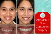 Experienced Cosmetic Dentist in Bristol for Gum Contouring Surgery
